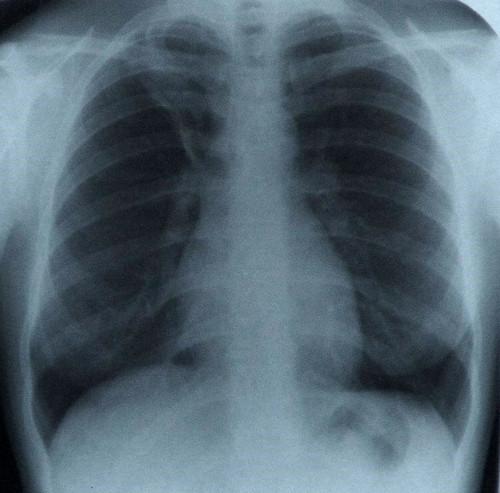 Radiografia - T.jpg