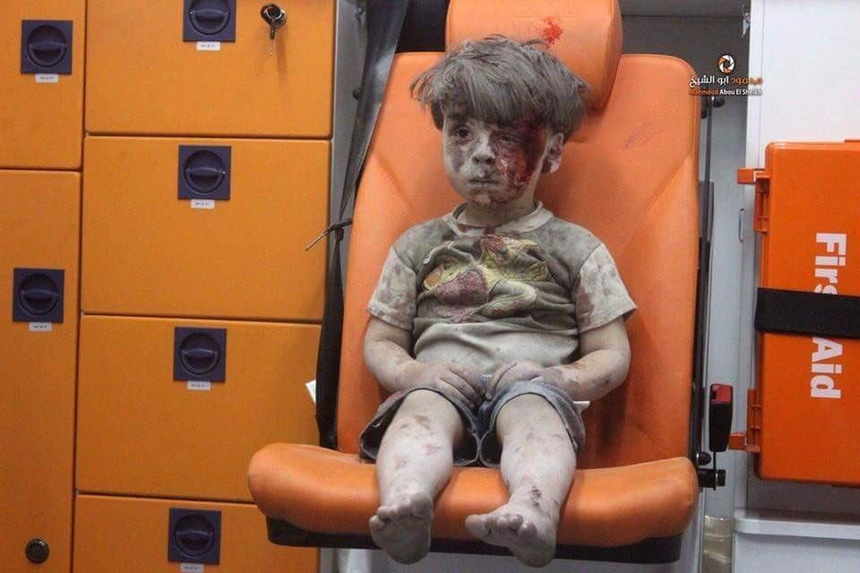 07.- A foto do menino de Aleppo que retrata a trag